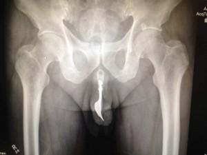 Fork in a penis  International Journal of Surgery Case Reports  Matt